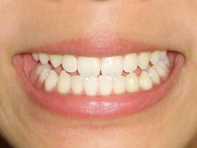 歯垢を取り除く